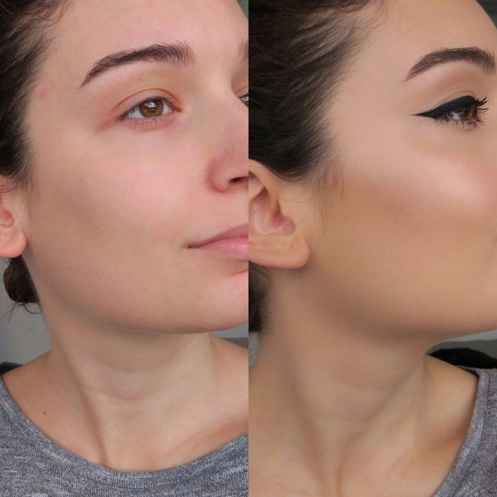 Antes y después Depotingueo